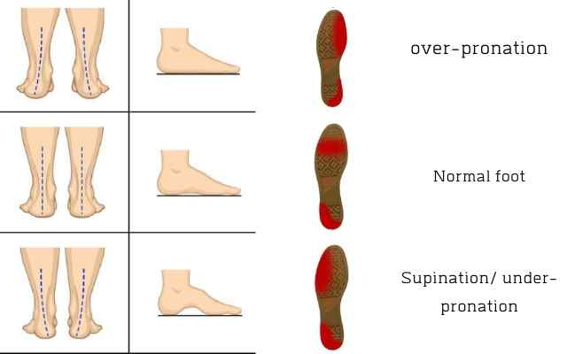 Pronation , supination, over-pronation